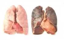 Akciğer Nasıl Temizlenir? Akciğeri Temizleyen Bitkiler Besinler Meyveler