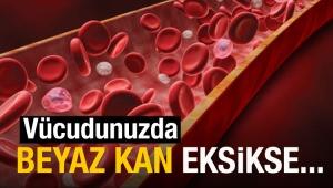 Beyaz Kan Eksikliği Nedir? Belirtileri Neler?